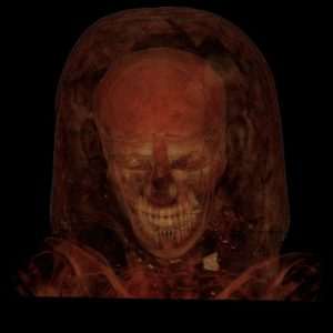 Gilded Lady CT scan showed a woman in early forthies with curly hair who might have died of tuberculosis. Field Museum photo